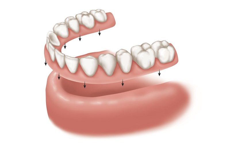 complete removable denture