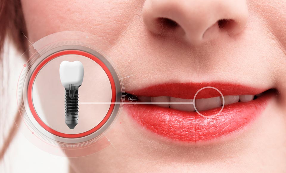 Beautiful Dental Implants